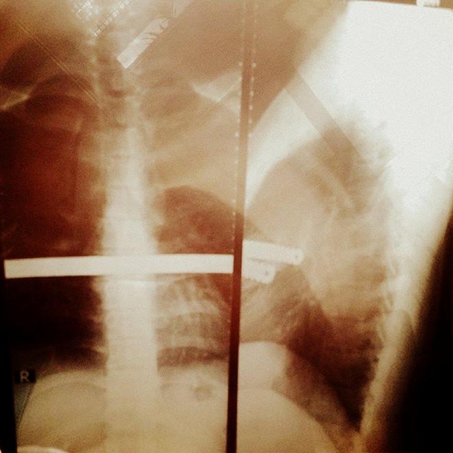 Duy Khánh Zhou Zhou phẫu thuật ngực