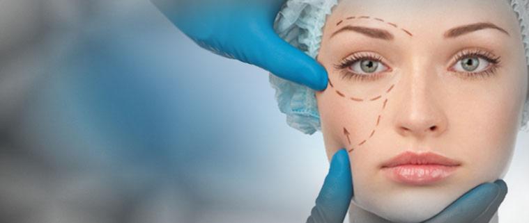 Phẫu thuật Midface - Điều trị bọng mỡ mi dưới kèm xóa nhăn rãnh mũi hiệu quả