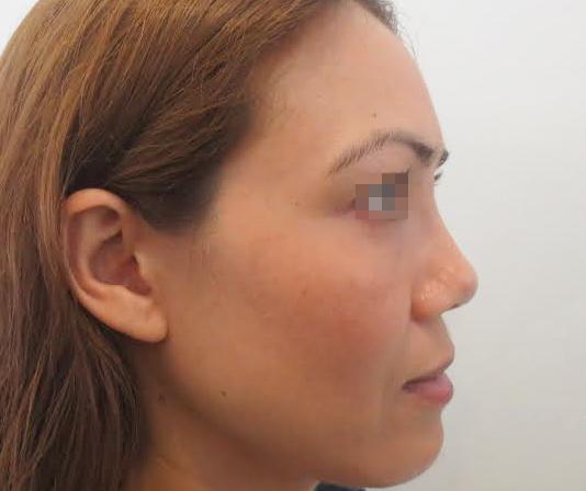Phẫu thuật thành công cho ca mũi lệch, méo mó do nâng mũi hỏng