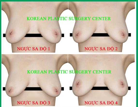 Phẫu thuật treo ngực chảy xệ