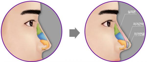 Sửa mũi ở Bệnh viện Fv