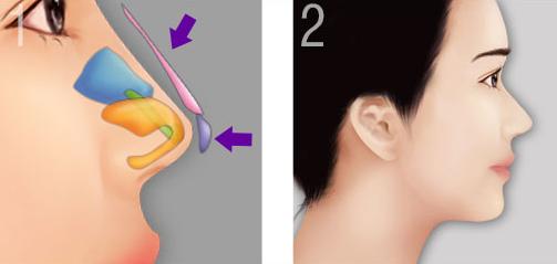Sửa mũi ở bệnh viện tai mũi họng