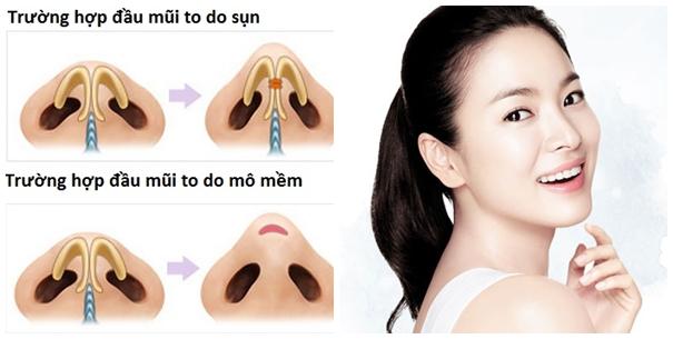 Sửa mũi thon gọn