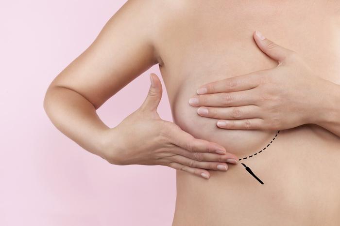 Nâng ngực mướp