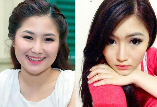 Sao Việt phẫu thuật khuôn mặt