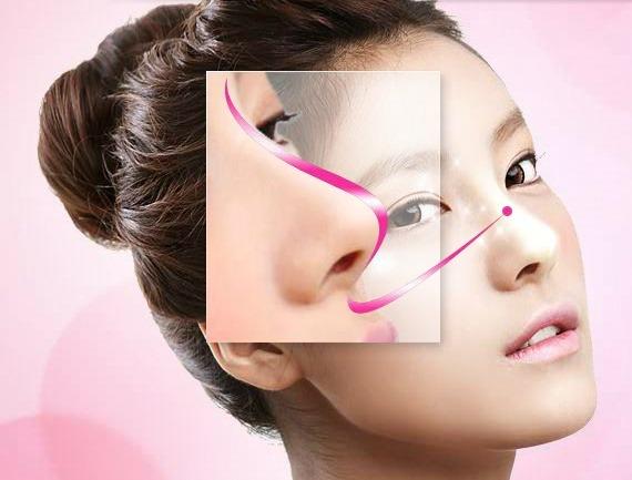 Nâng mũi kiểu Hàn Quốc