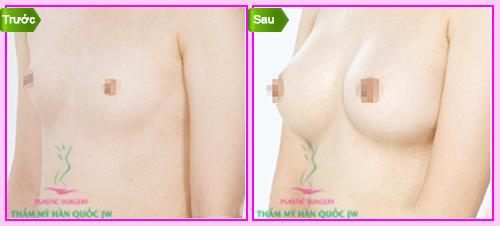 Nâng ngực bằng mỡ tự thân không phẫu thuật