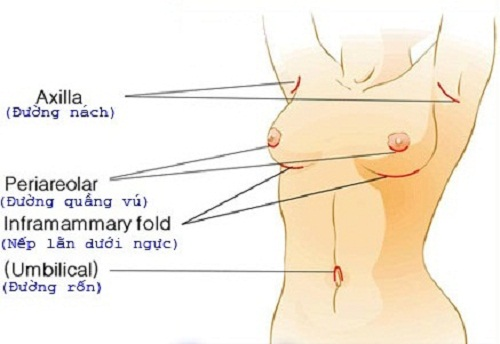 Nâng ngực nội soi đường tròn