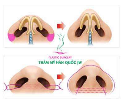 Thu gọn cánh mũi có đau không