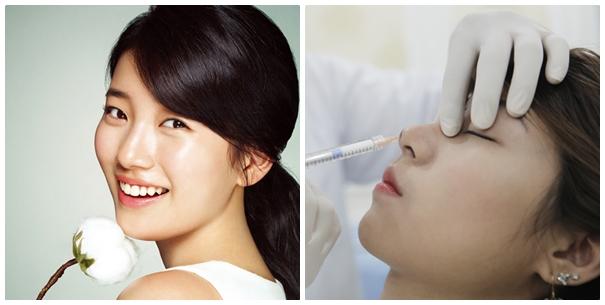 Nâng mũi không phẫu thuật Radiesse