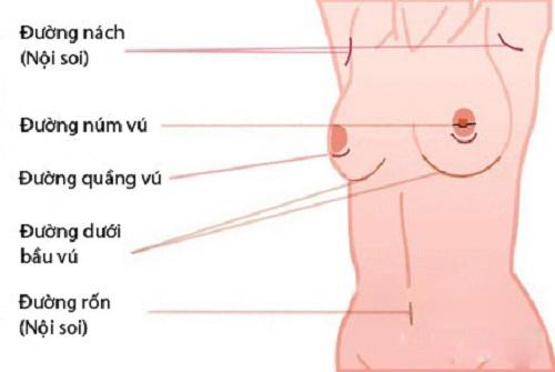 Phẫu thuật nâng ngực qua đường bụng