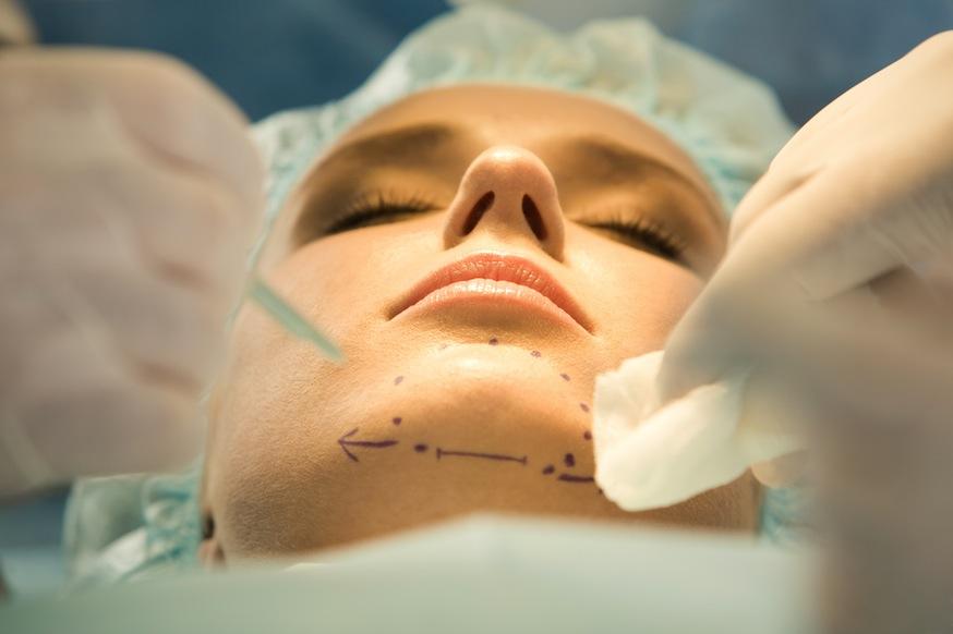 Quy trình phẫu thuật độn cằm