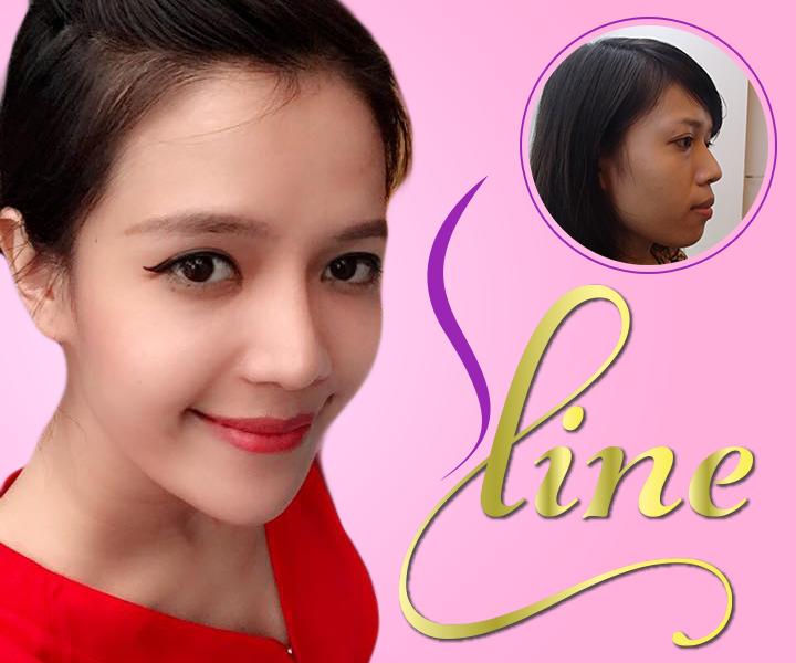 Vì sao nói sụn tai không đóng vai trò quan trọng trong nâng mũi S line chuẩn Hàn?