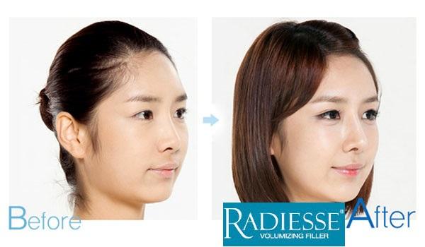 Nâng mũi Radies được bao lâu