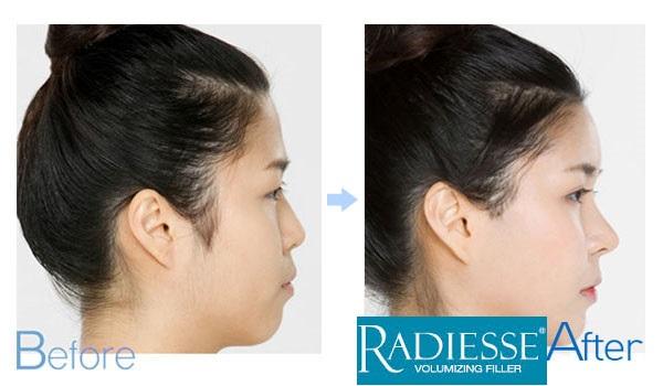Nâng mũi mô sinh học Radies