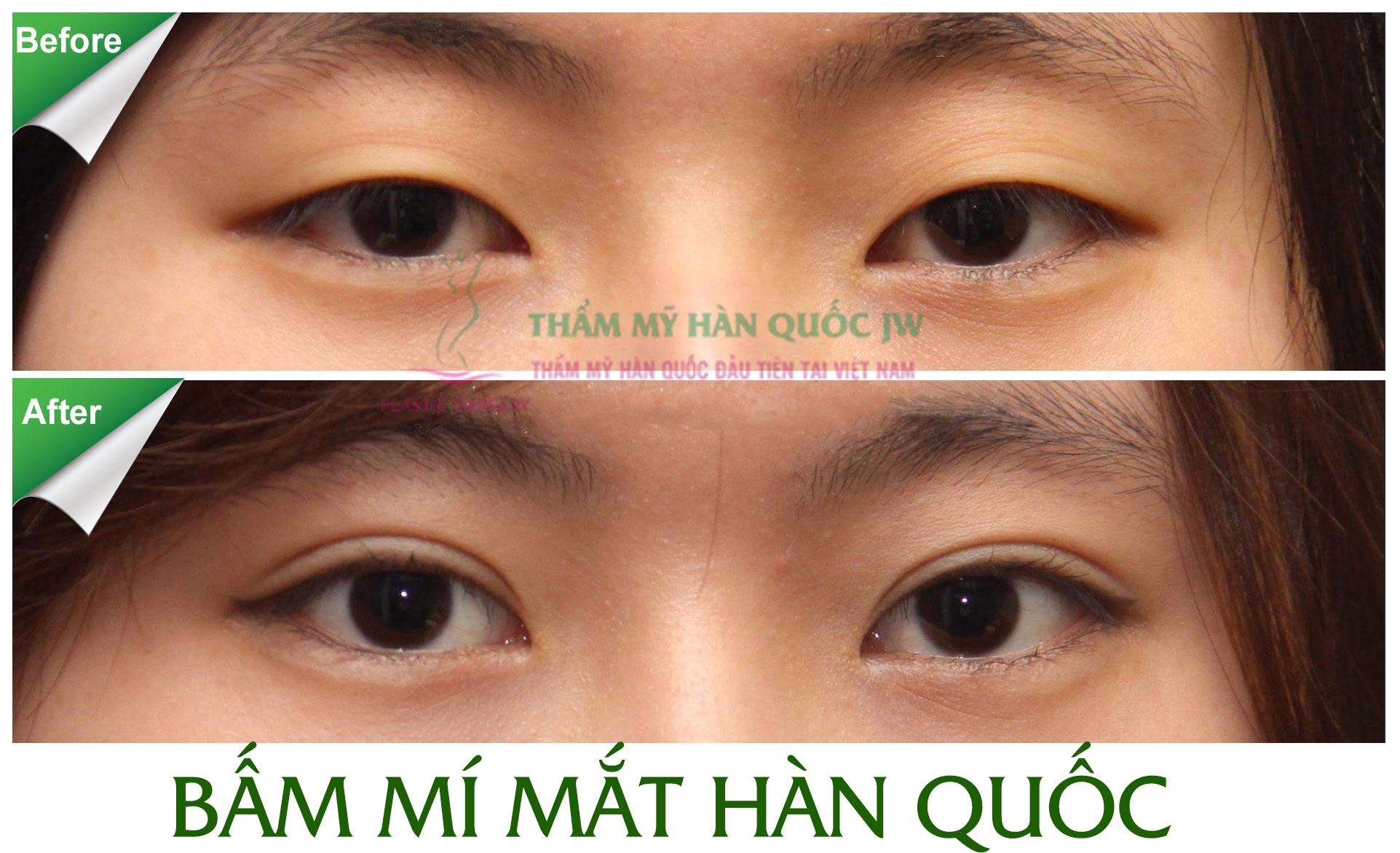 Tai sao nen chon dich vu bam mi Han Quoc de lam dep doi mat