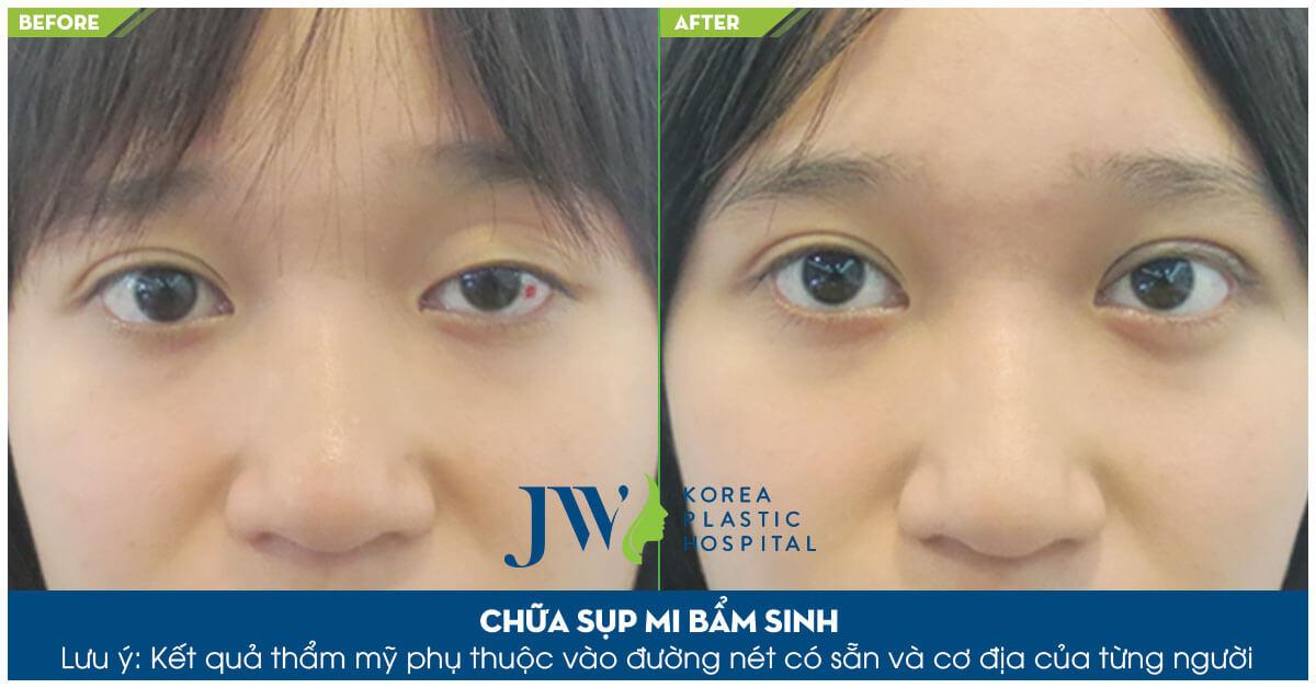 Hình ảnh khách hàng trước và sau khi phẫu thuật mắt to mắt nhỏ tại JW