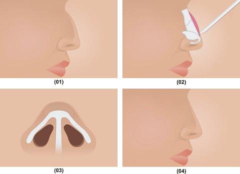 Khắc phục lâu dài tình trạng mũi lân, mũi khoằm