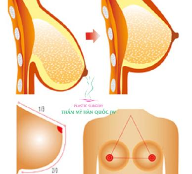 Nâng ngực cho phái đẹp
