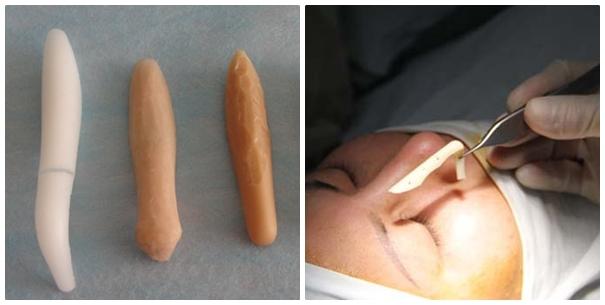 Phẫu thuật nâng sóng mũi