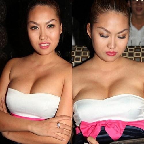 Sao phẫu thuật ngực