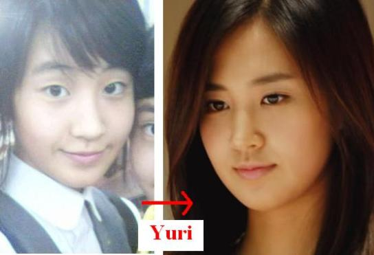 Yuri cắt mí