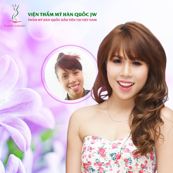 Tu van Online Phau thuat ham ho mom khong can nieng rang 4112015