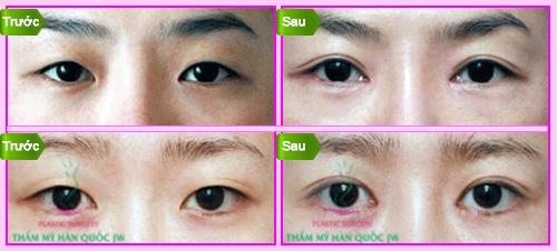 Bấm mí mắt Hàn Quốc bao nhiêu tiền