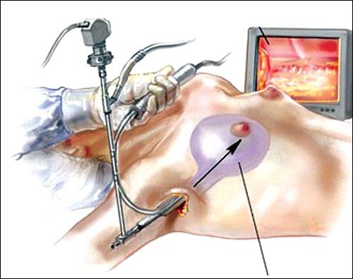 Video phẫu thuật ngực khi đi máy bay