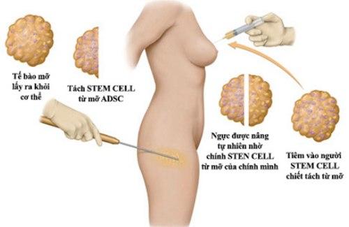 Nâng ngực nội soi hay cấy mỡ
