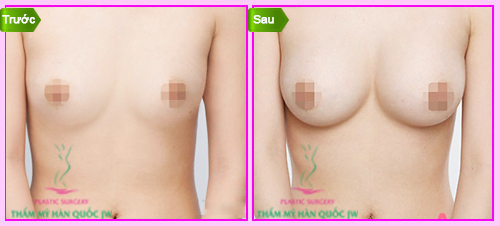 jessica nâng ngực