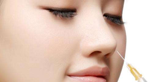 Nâng mũi không phẫu thuật bằng Restylane Perlane