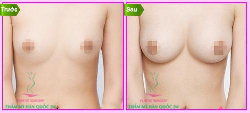 Nâng ngực hiệu quả
