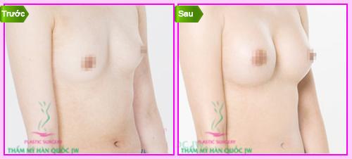 Chăm sóc ngực sau khi nâng ngực nội soi