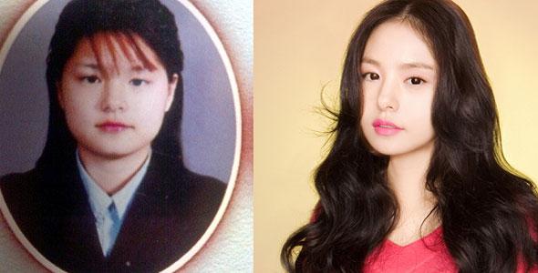 Sao Hàn phẫu thuật thẩm mỹ mắt đẹp