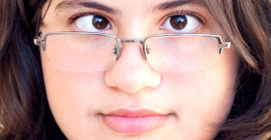 Thẩm mỹ mắt bị lác