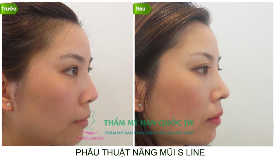 Bí quyết để có chiếc mũi S line đẹp hoàn hảo chuẩn Hàn