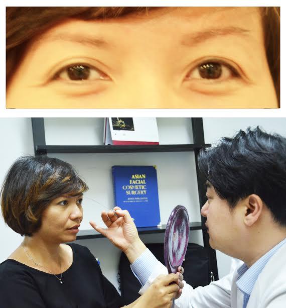 Cắt mí mắt đẹp chuẩn sao Hàn - Cắt mí mắ Hàn Quốc - Cắt mắt hai mí - Cắt mắt 2 mí