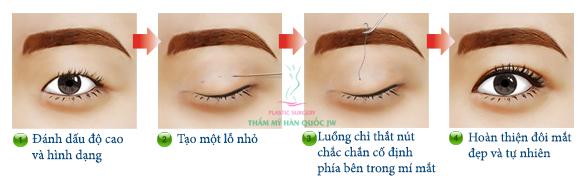 Bấm mí mắt có để lại sẹo không
