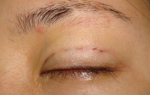 Hệ quả của bấm mí mắt