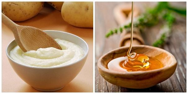 Mách bạn bí quyết nâng ngực đơn giản từ mật ong và khoai tây