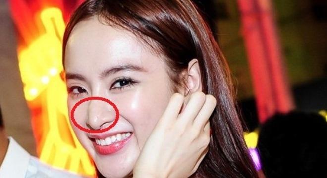 Mũi sửa của Angela Phương Trinh bị chê xấu