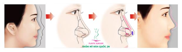 Nâng mũi bọc sụn là gì