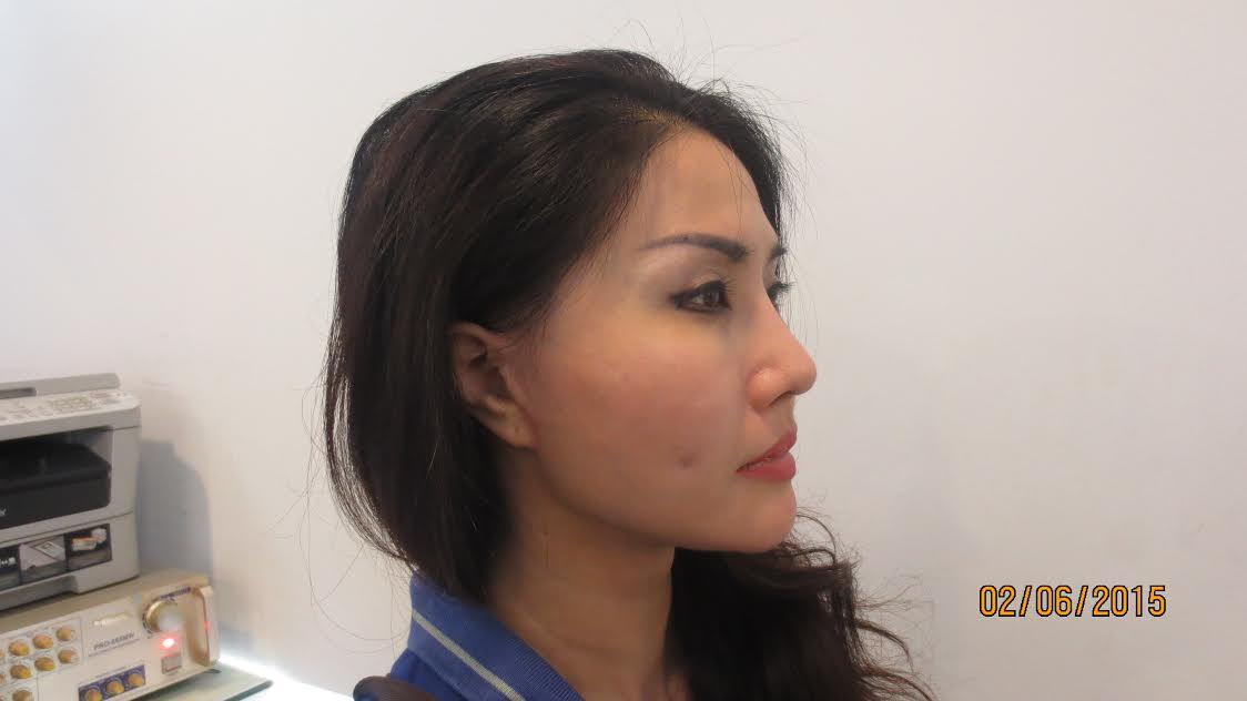 nang-mui-tutopalast-1
