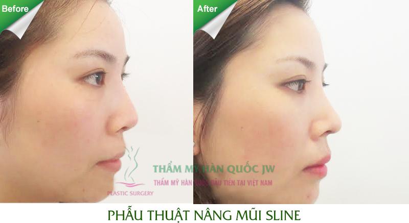 Sửa mũi có ảnh hưởng đến tướng số