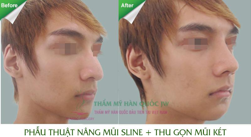 nang muisline_07