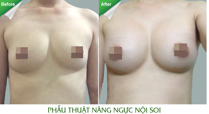Nâng ngực bằng Breast Fit System