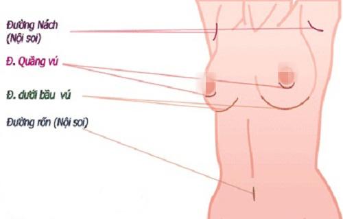 Nâng ngực có cho con bú được không