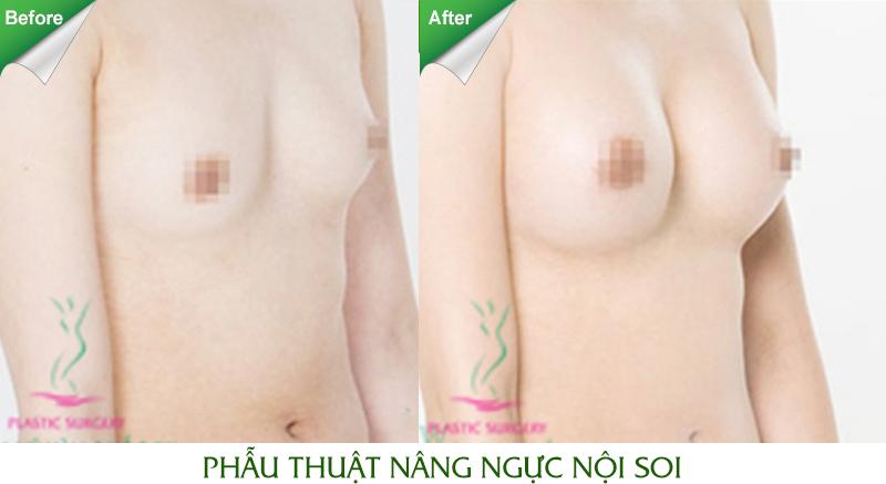 Nâng ngực đẹp tự nhiên