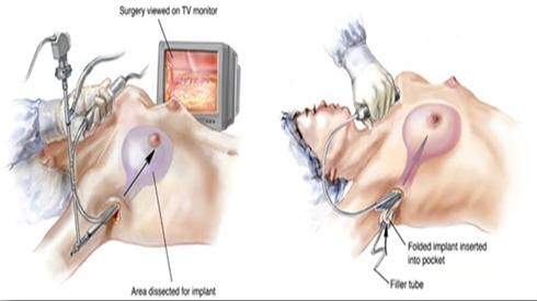 Phẫu thuật ngực ở Thái Lan